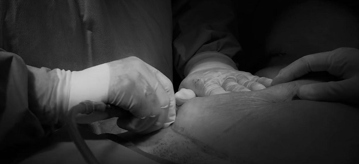 precio abdominoplastia